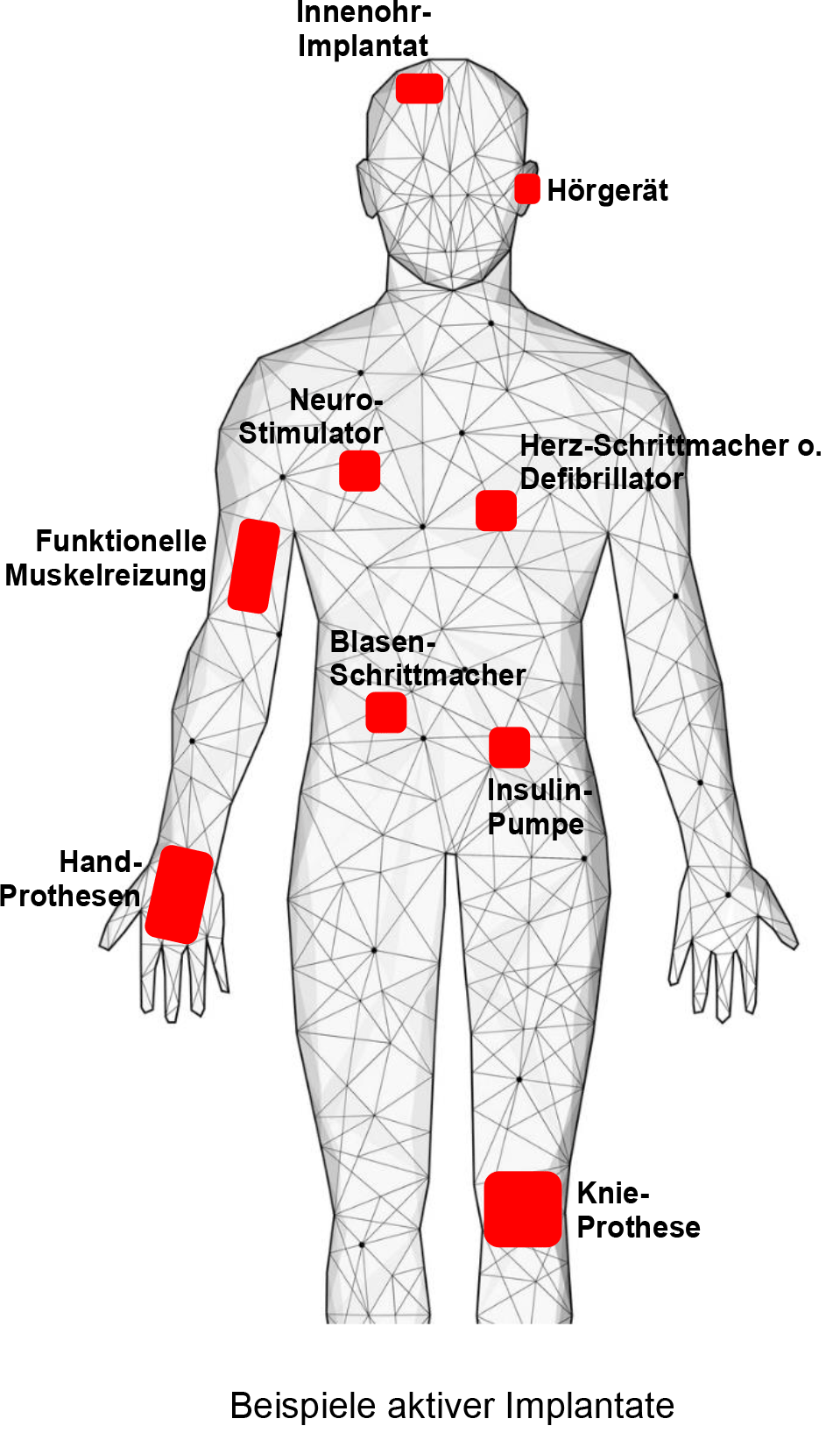 Beispiele-aktiver-Implantate
